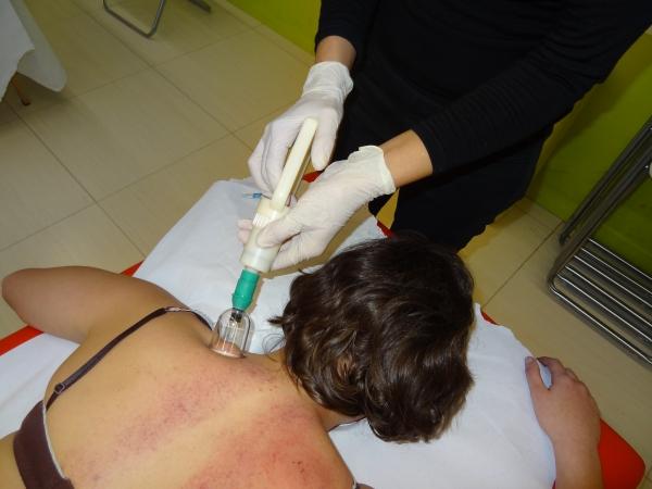 Curs Massatge amb Ventoses - Barcelona Barcelona